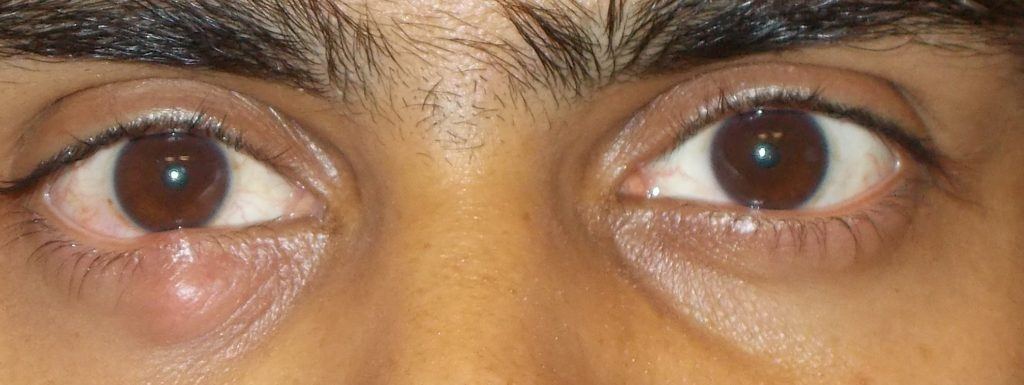 Chalazion on the Right Lower Eyelid