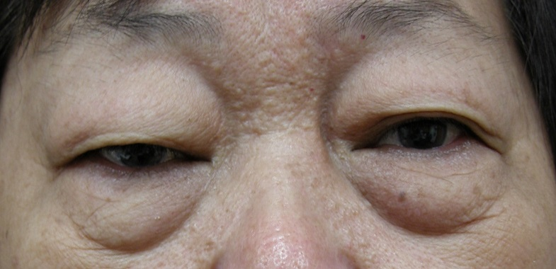 Singapore Eyelid Conditions Singapore | Eyelid Skin Conditions | Dr