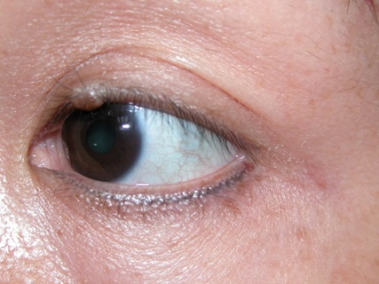 Lumps and bumps on the eyelids - Non infection types/tumours